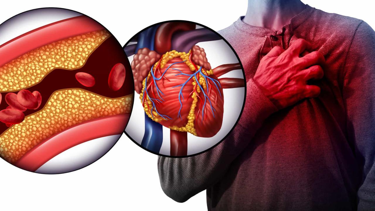 Hipertensão Pulmonar Tromboembólica Crónica: O que é e 5 sinais de alarme