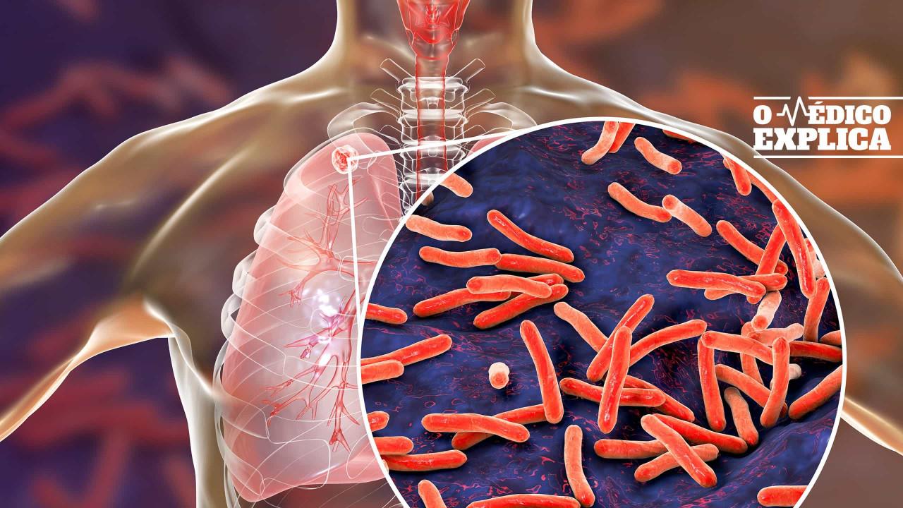 O médico explica: A tuberculose ainda vive entre nós. Entenda