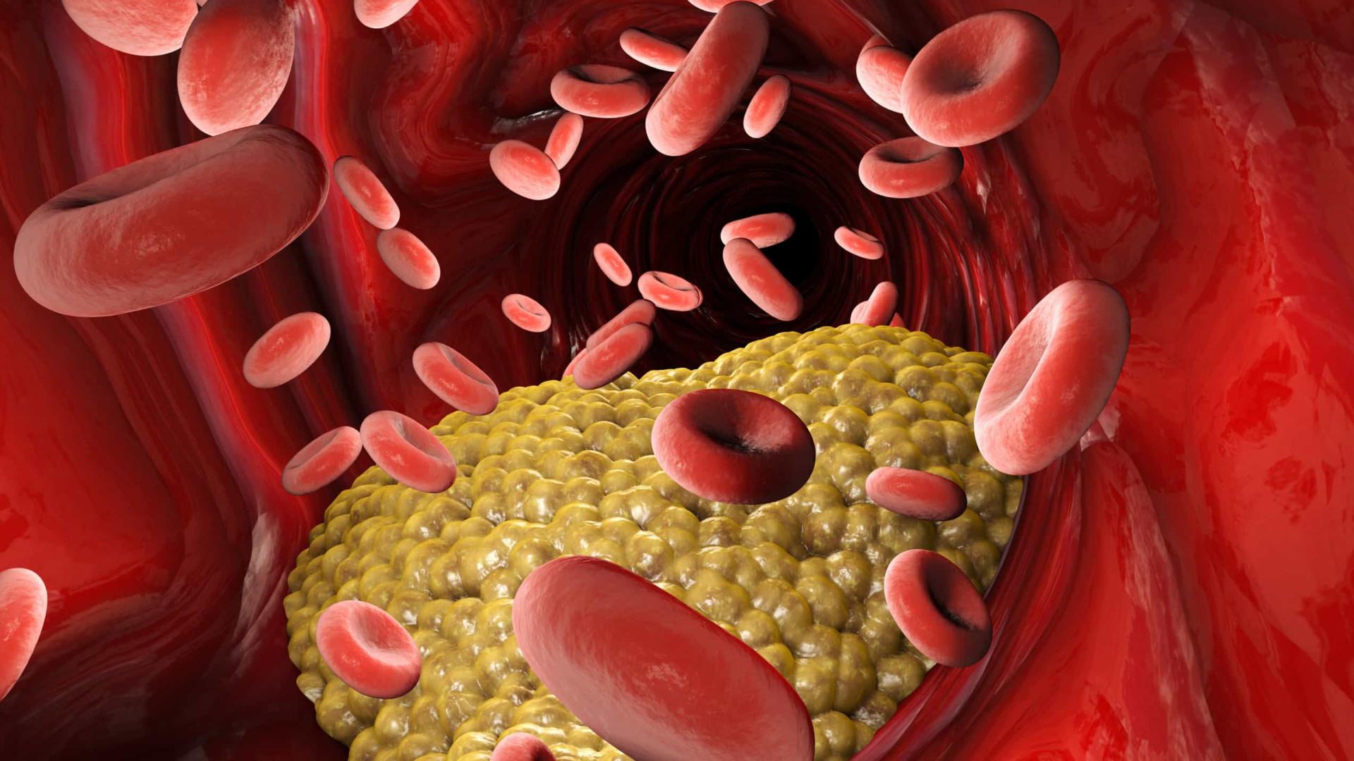 colesterol low-pitched na gestación dieta