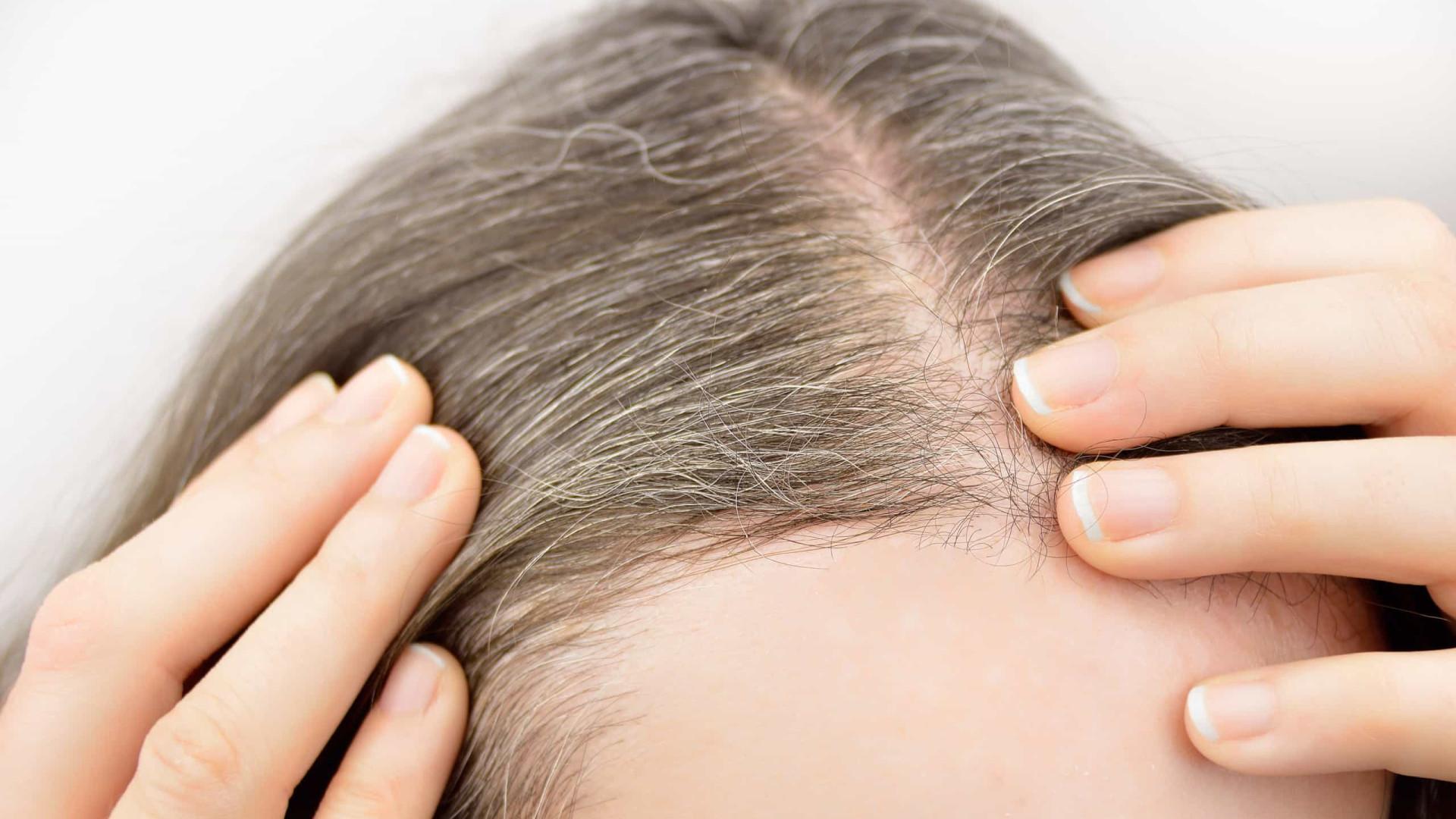 Mito ou facto: Afinal, o stress causa o aparecimento de cabelos brancos?