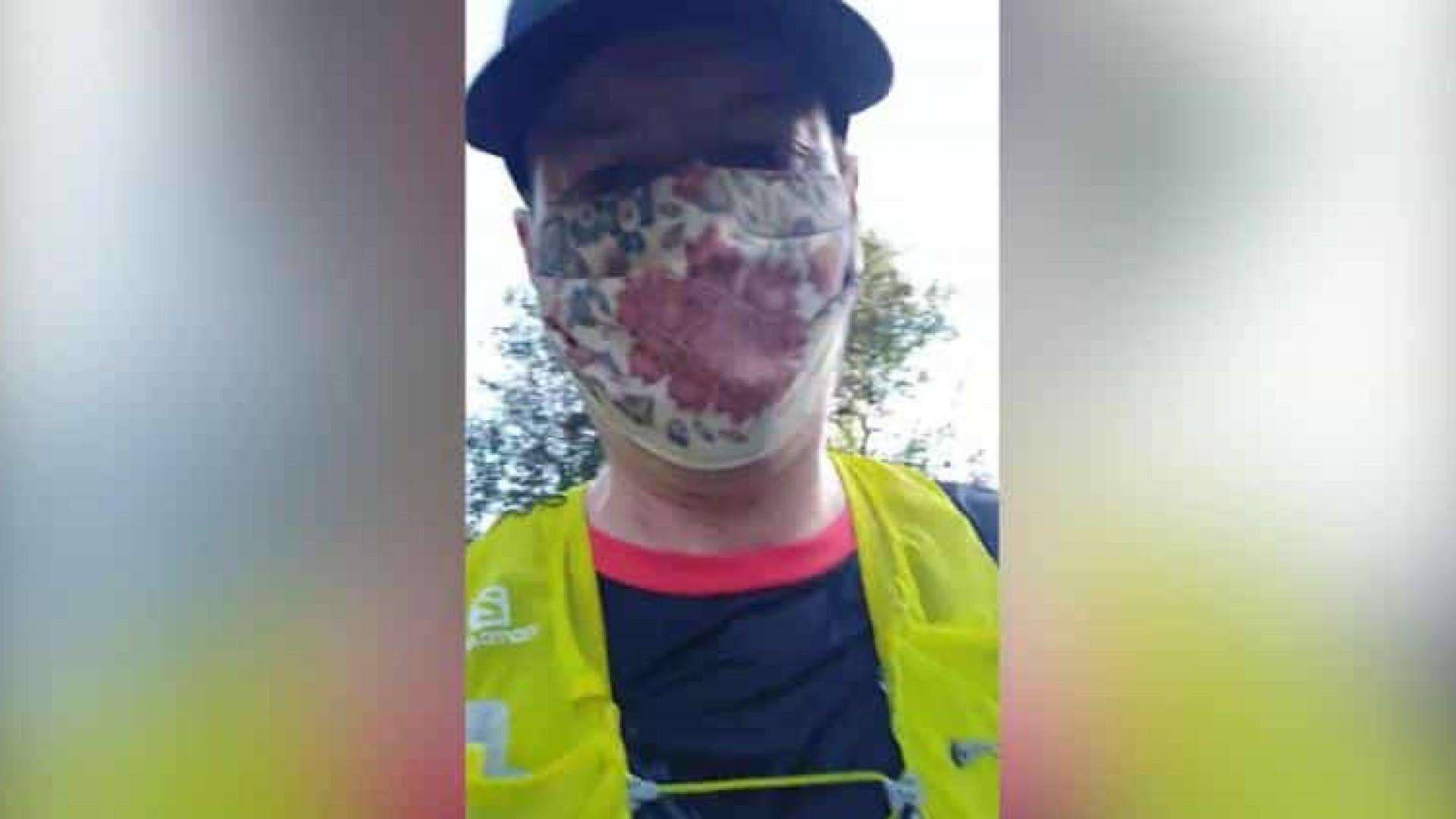 Médico correu 35 km com máscara para provar que não causa hipoxia