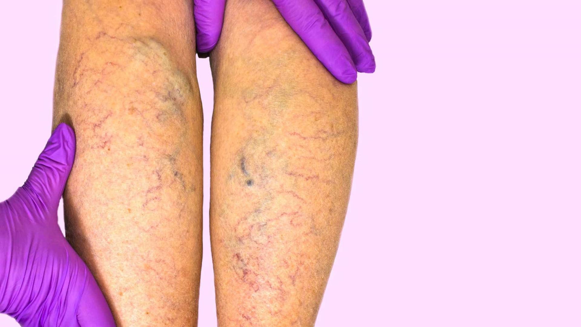 Diabetes pode causar dor nas pernas e braços