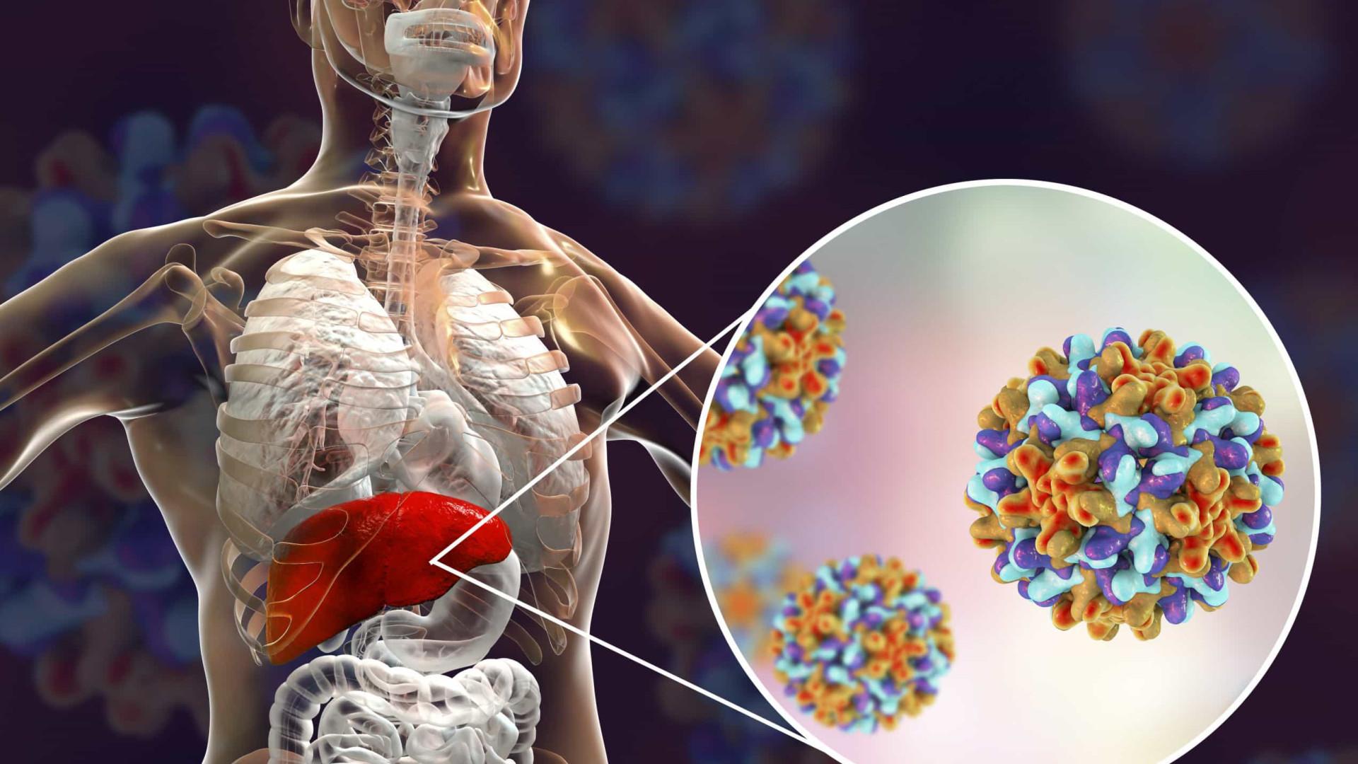 Diagnóstico precoce é essencial para o tratamento eficaz das hepatites