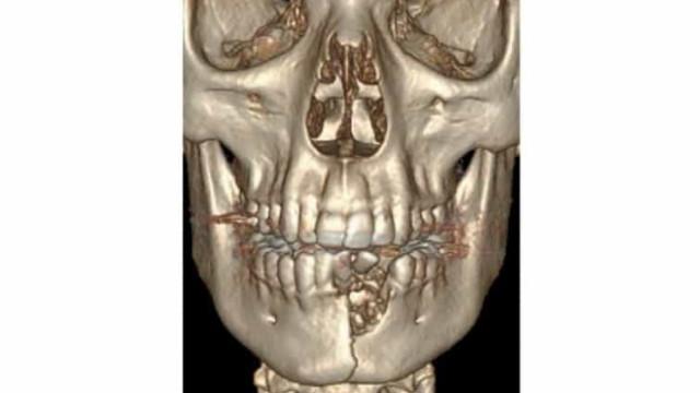 Explosão de cigarro eletrónico deixa adolescente com maxilar fraturado