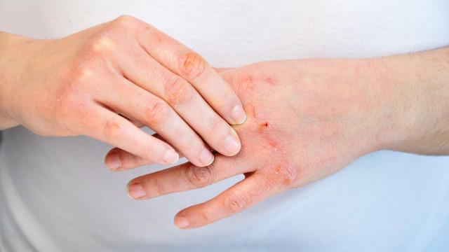 25% dos portugueses com dermatite grave têm doença fora de controlo