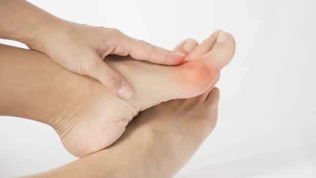 Ortopedista dá a conhecer cinco mitos e verdades sobre os joanetes