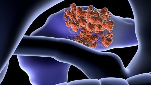 Oito sintomas de cancro do pâncreas que passam despercebidos
