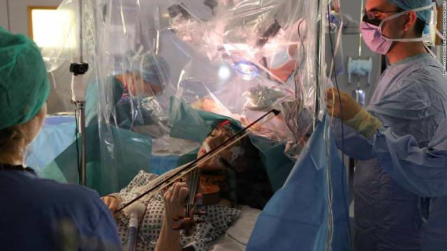 Tocou violino enquanto era operada ao cérebro. Eis as imagens