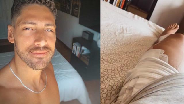 Ângelo Rodrigues mostra perna após operação e recebe motivação da irmã