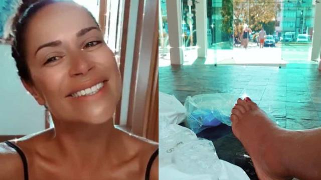 """Dânia Neto com pé inchado após ser picada por vespas. """"Não consigo andar"""""""
