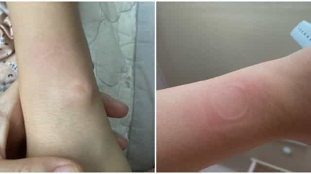 Aquecimento excessivo no Apple Watch SE queima alguns utilizadores