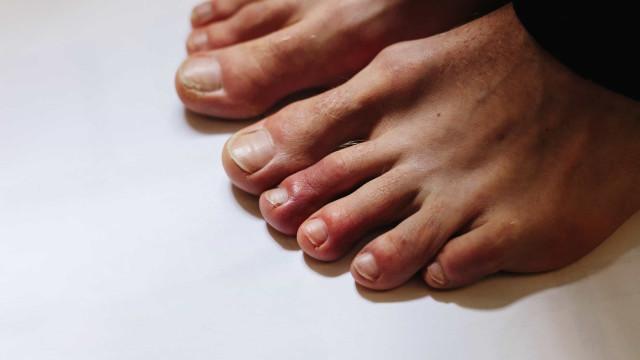 'Dedos de Covid'. Novo sintoma pode durar meses, alertam cientistas