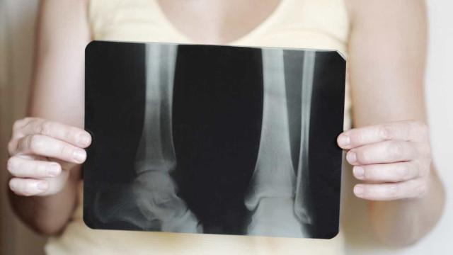 Estes 15 alimentos (ricos em cálcio) ajudam a prevenir a osteoporose