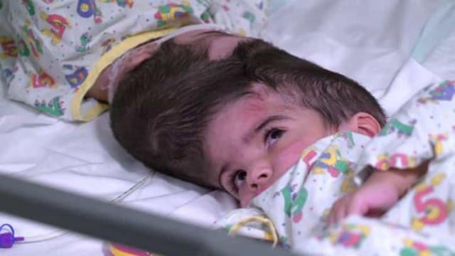 Gémeas unidas pelo crânio separadas após 50 horas de cirurgias