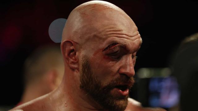Já se conhece a gravidade do corte de Tyson Fury. Foram 47(!) pontos