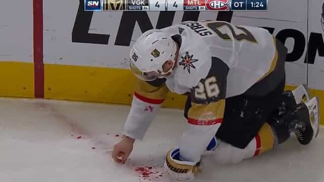 Jogador perde alguns dentes durante o jogo e acaba a recolhê-los no gelo