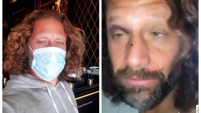 Ex-marido de Ana Malhoa surge com hematomas e ferimentos no rosto