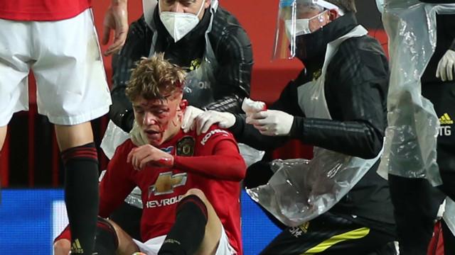 Jovem do Manchester United ficou neste estado após choque arrepiante