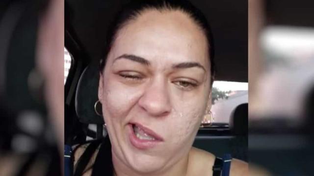 Mulher mostra rosto ao sair do dentista e imagens já são virais