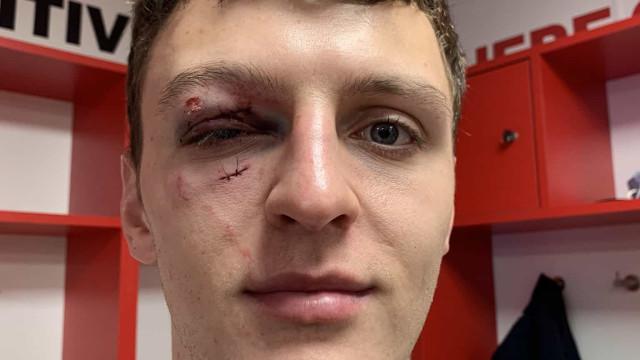 Ficou com a cara neste estado e o árbitro nem falta assinalou