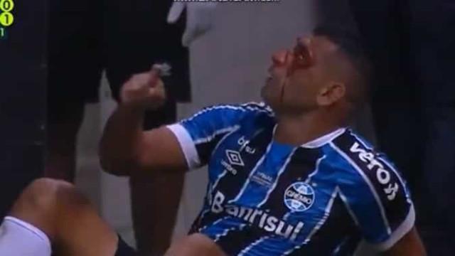 Jogador do Palmeiras deixa ex-Benfica neste estado após cotovelada