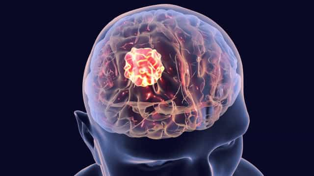 Cancro da cabeça e pescoço: Importância de diagnosticar precocemente