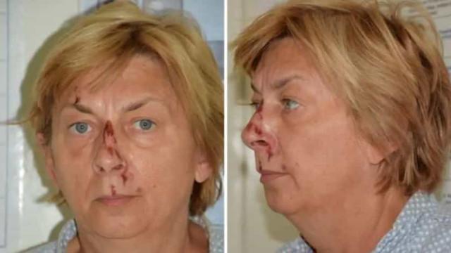 Mulher sem memória encontrada na Croácia. Não sabe quem é ou de onde vem