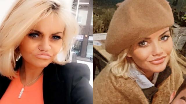 Aos 47 anos, Danniella Westbrook surpreende com mudanças no rosto