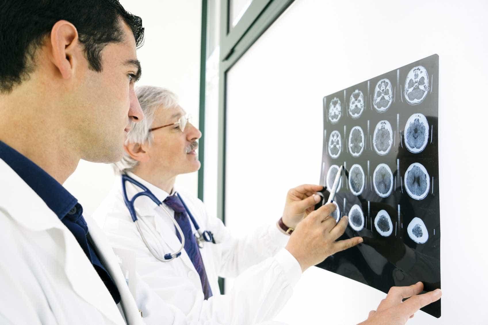 Resultado de imagem para alzheimer neuronios descoberta