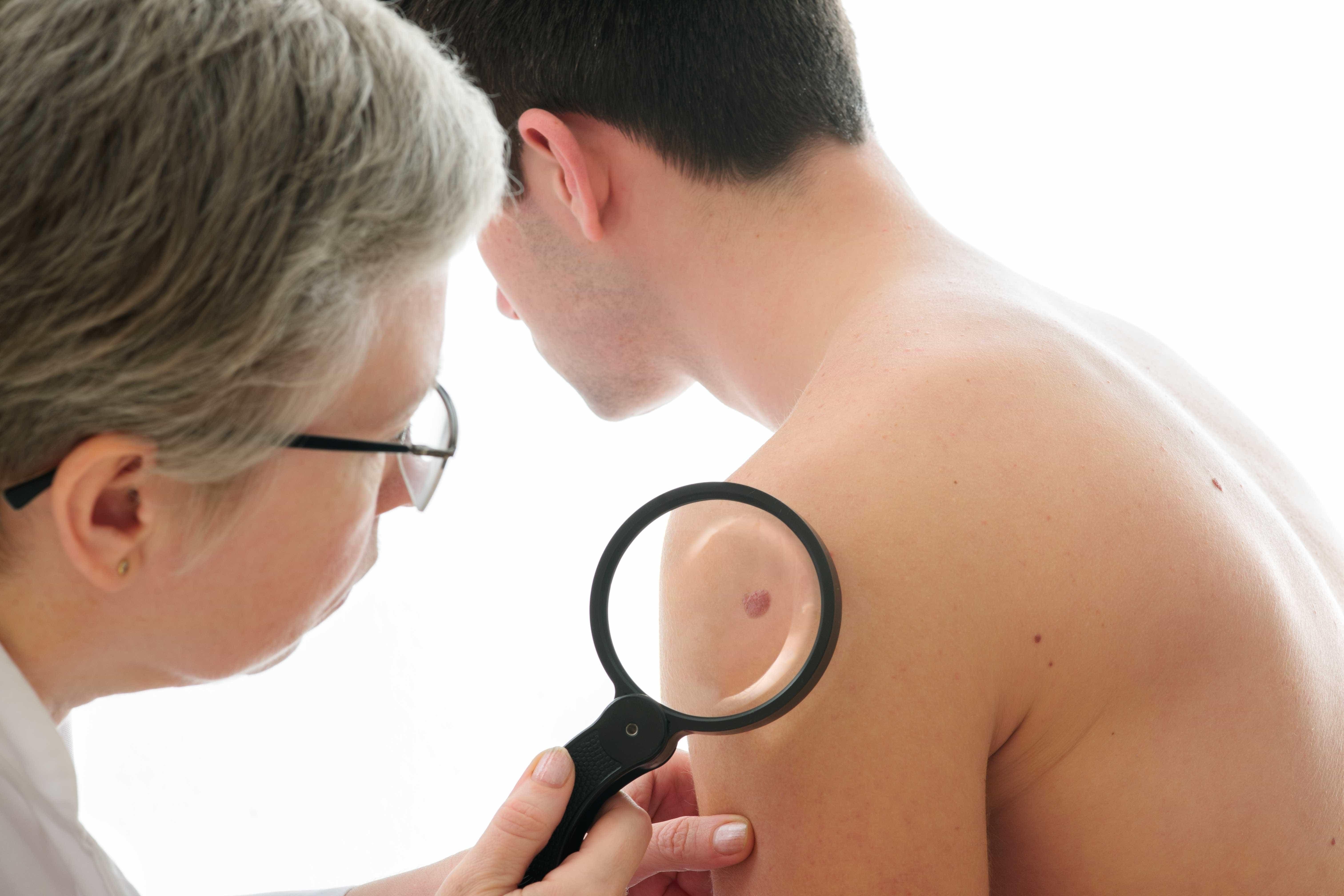Sinais de cancro de pele que nem sempre são fáceis de decifrar