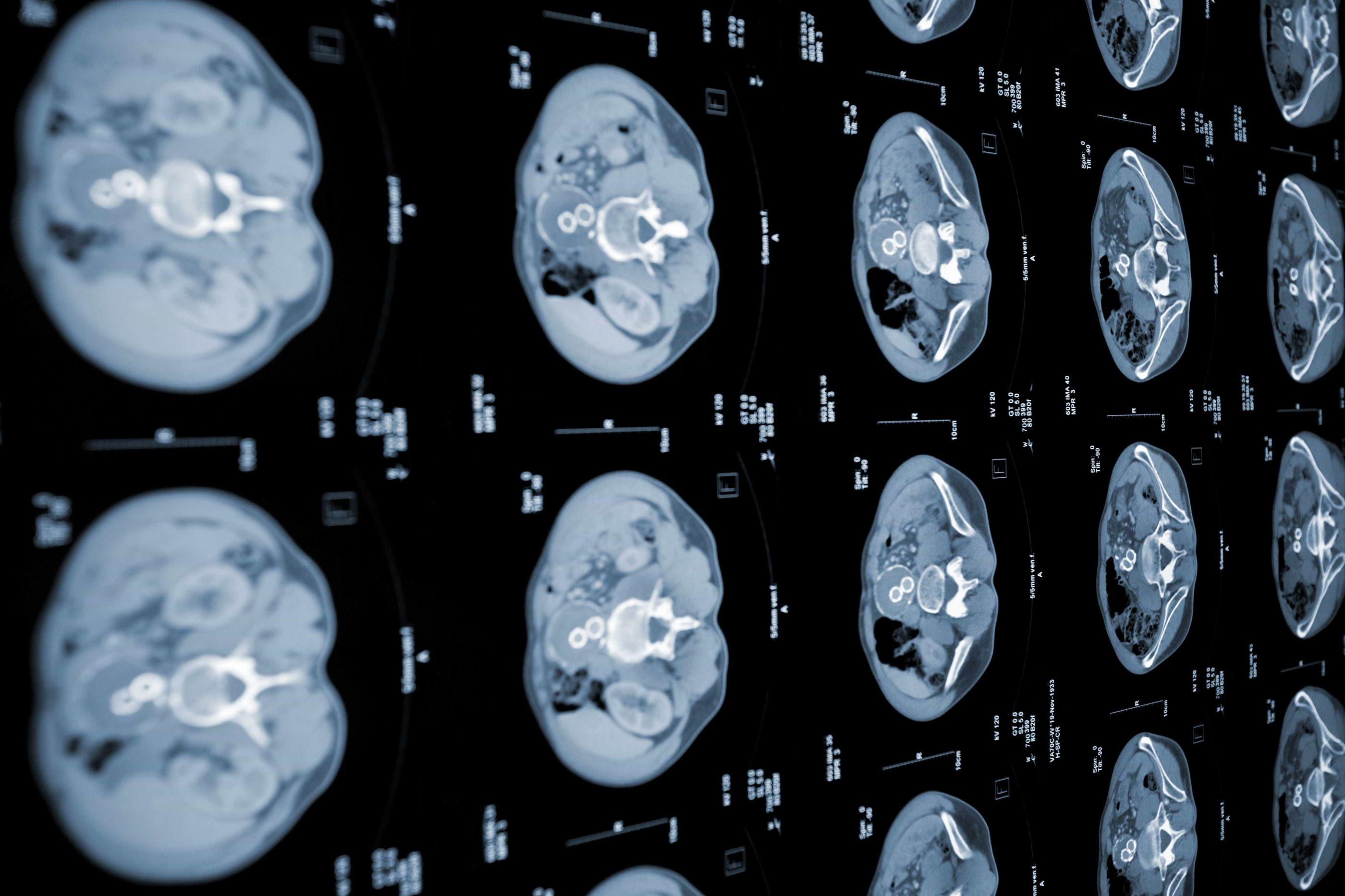 Especialistas querem fazer mais pelos doentes com cancro do pâncreas