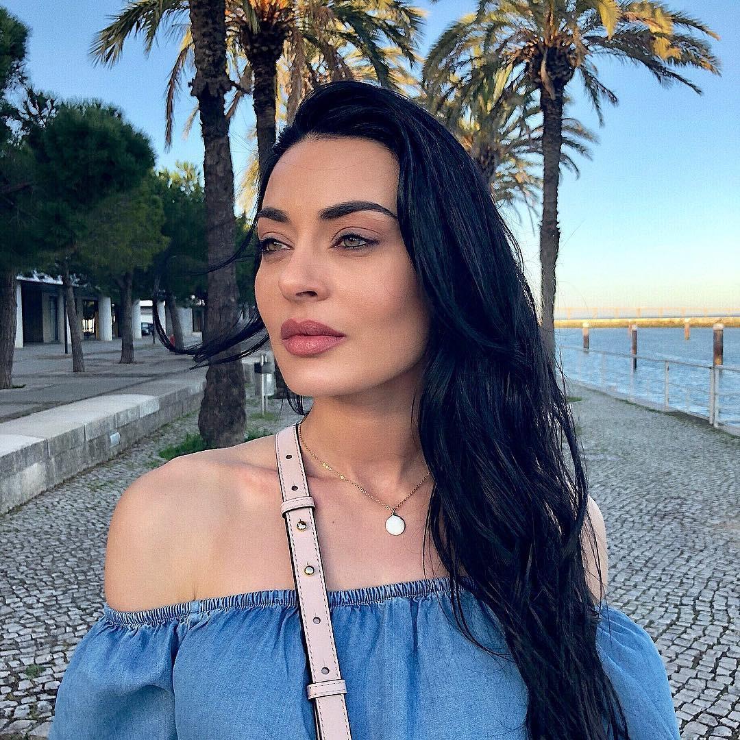 """Diana Monteiro exibe mancha no rosto: """"Faz de mim um ser humano"""""""