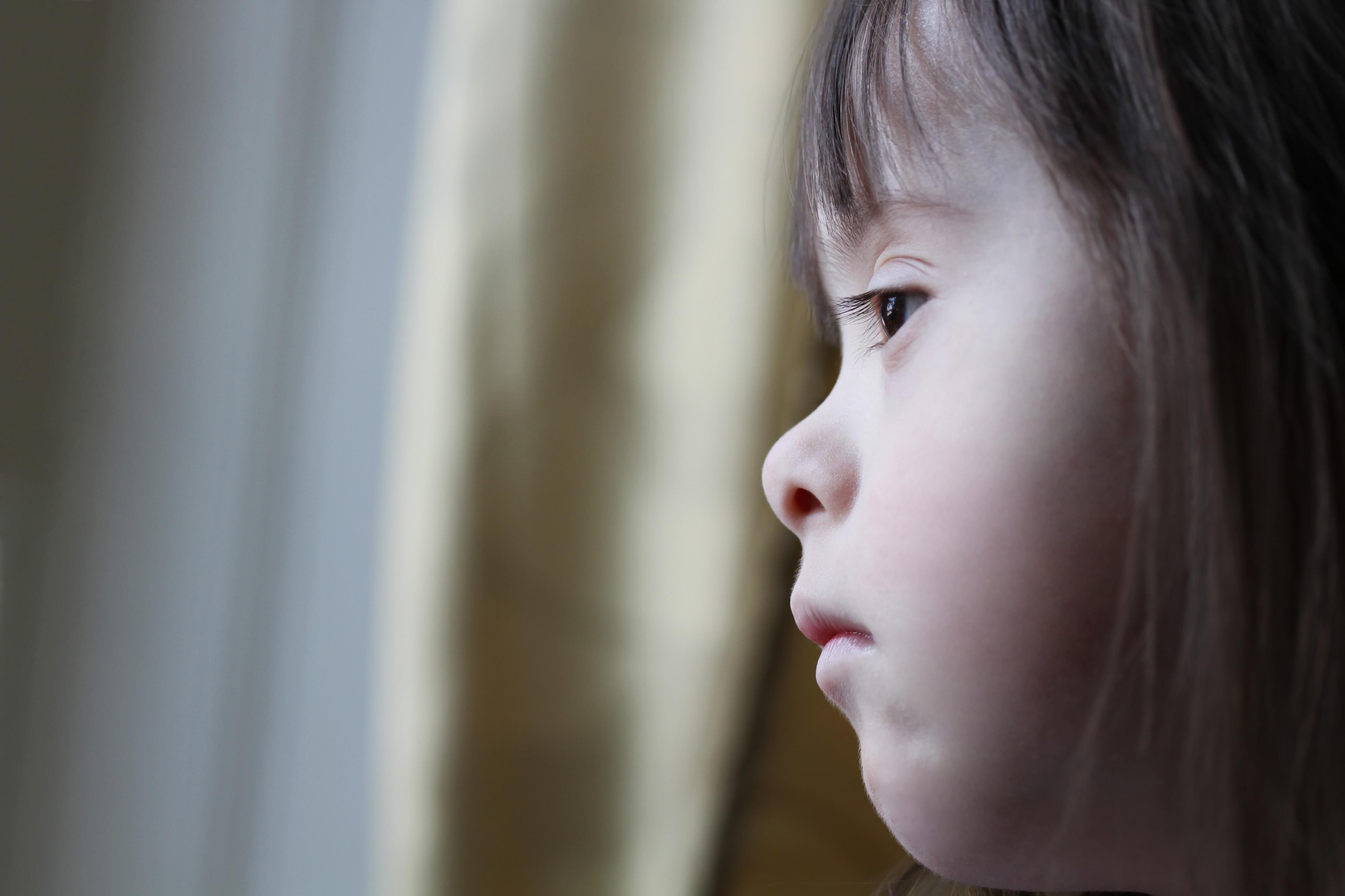 Tudo o que precisa de saber sobre a Síndrome de Down