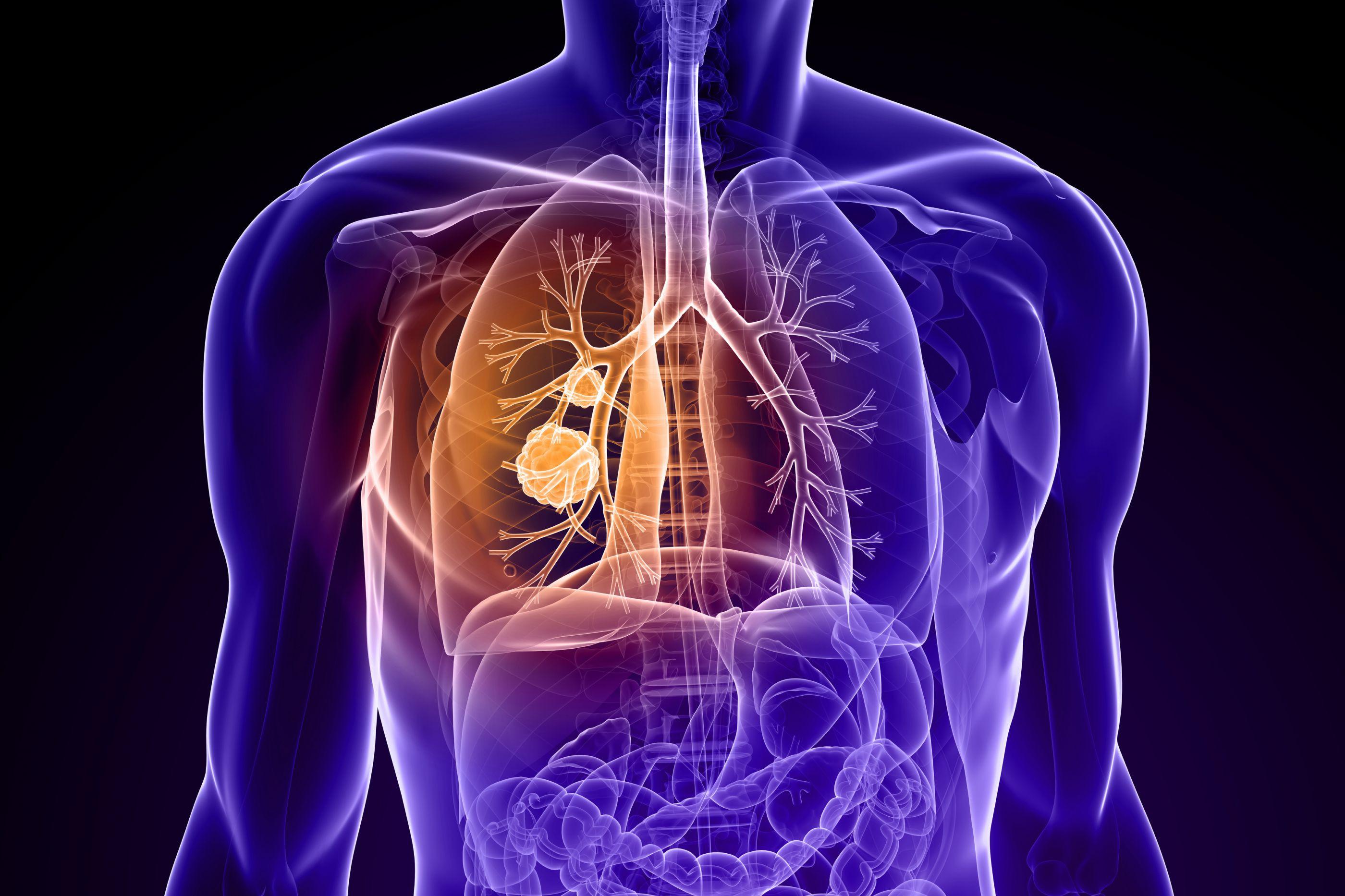 Cancro do pulmão: Comer estes alimentos reduz risco de doença mortal