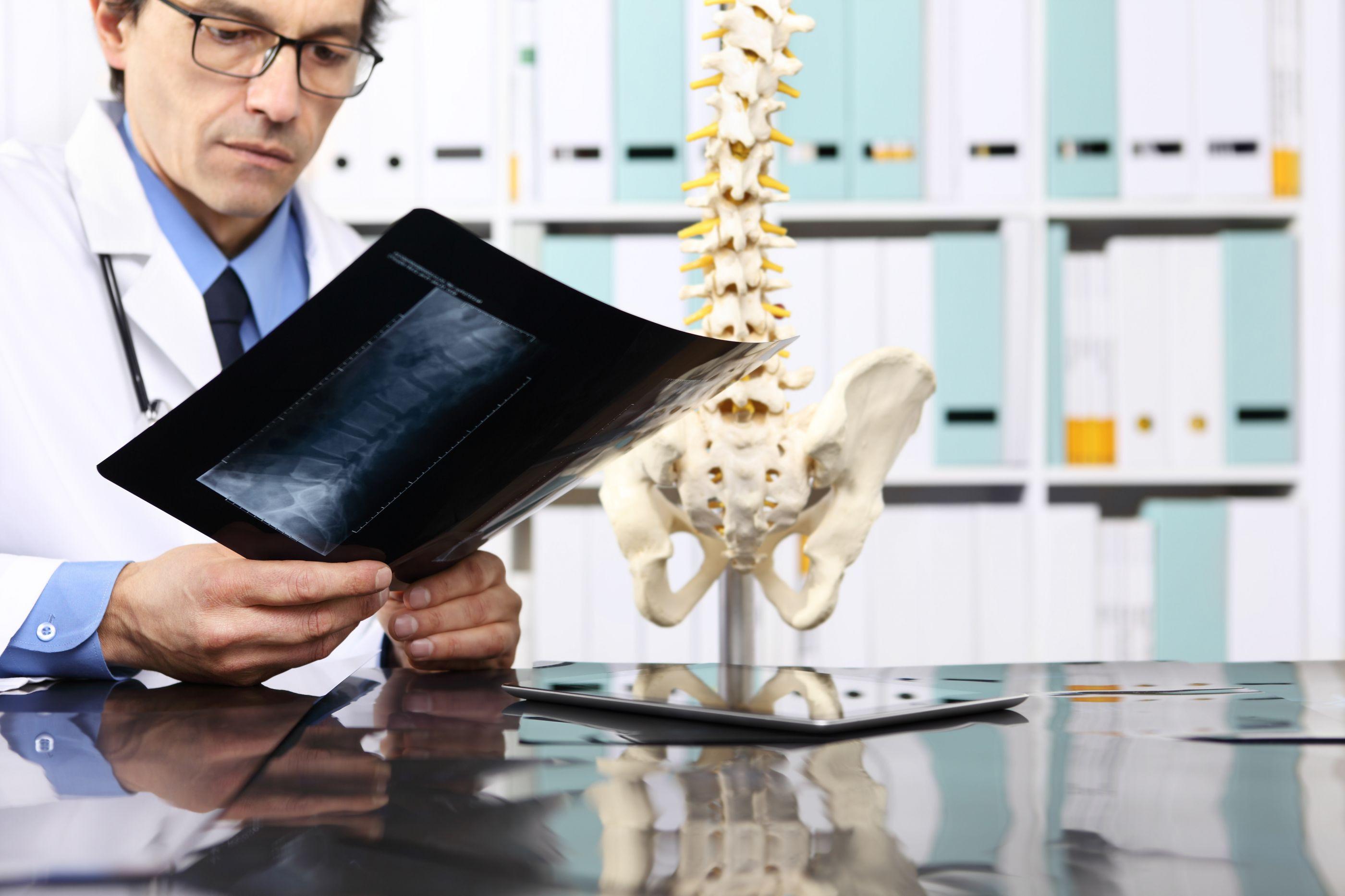 Cirurgias à coluna são mais comuns em mulheres ativas, aponta estudo