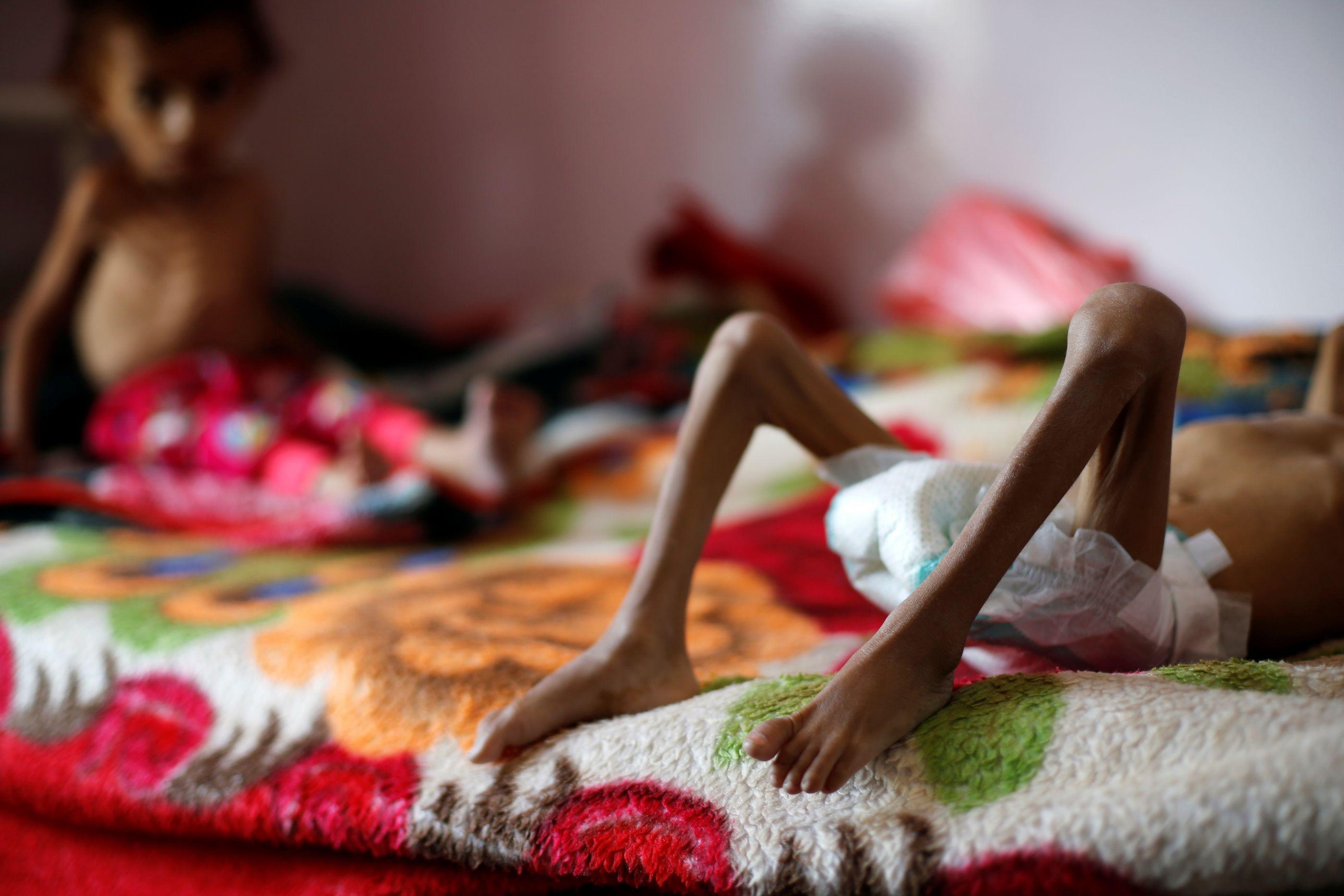 ONU quer fornecer alimentos a 14 milhões de iemenitas