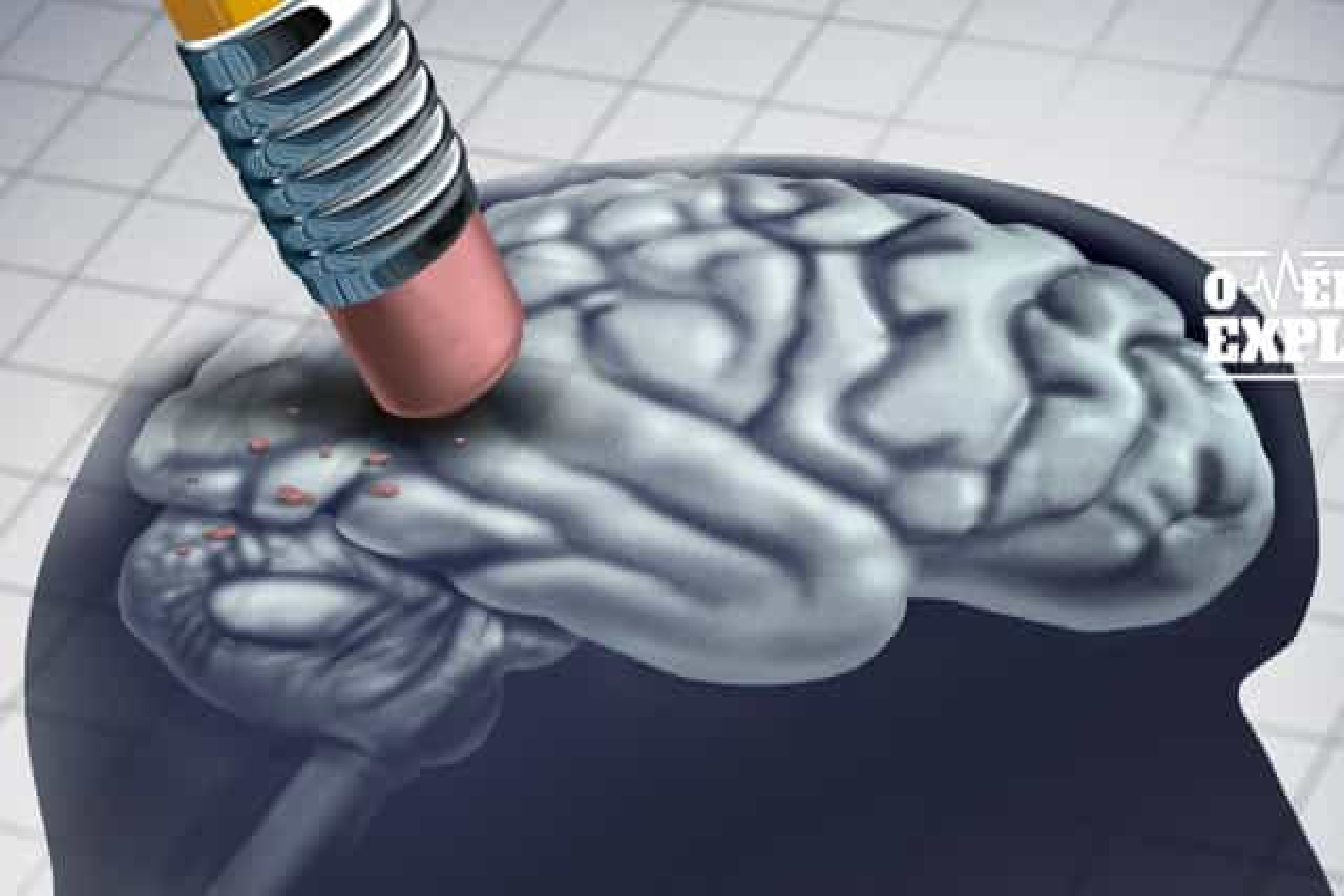 O médico explica: Tudo o que deve saber sobre a Síndrome de Richardson