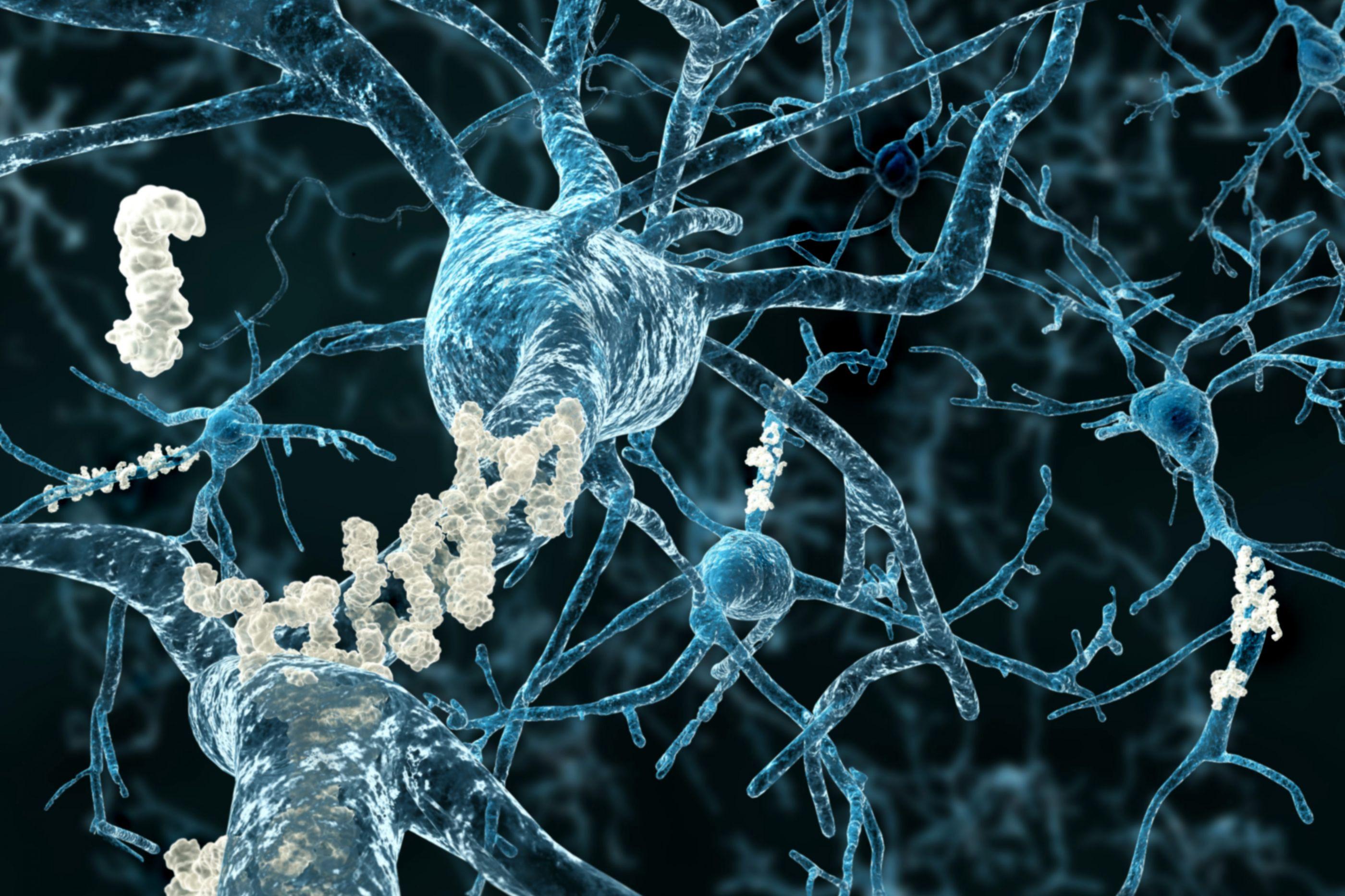 Aliado surpresa. Esta droga pode melhorar memória de doentes de Alzheimer
