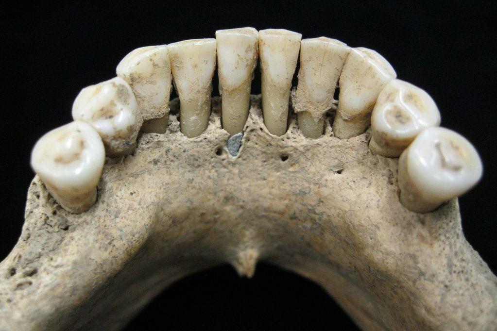 Porque é que esta mulher medieval tinha lápis-lazúli nos dentes?