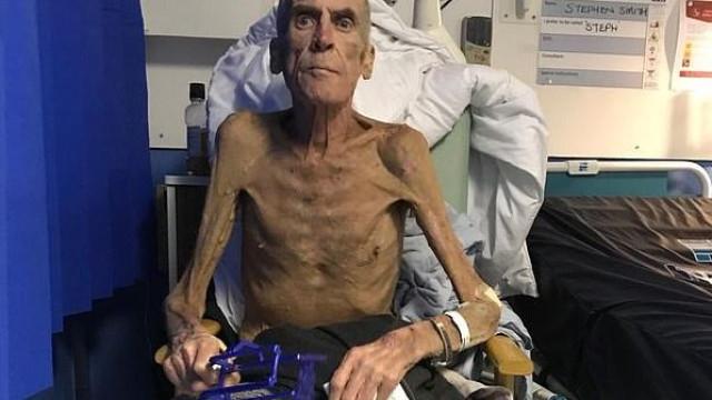 Morreu o homem que com 38 kg foi dado como apto para trabalhar