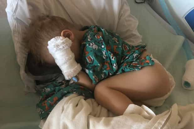 Menino de dois anos quase morreu com pipoca alojada no pulmão