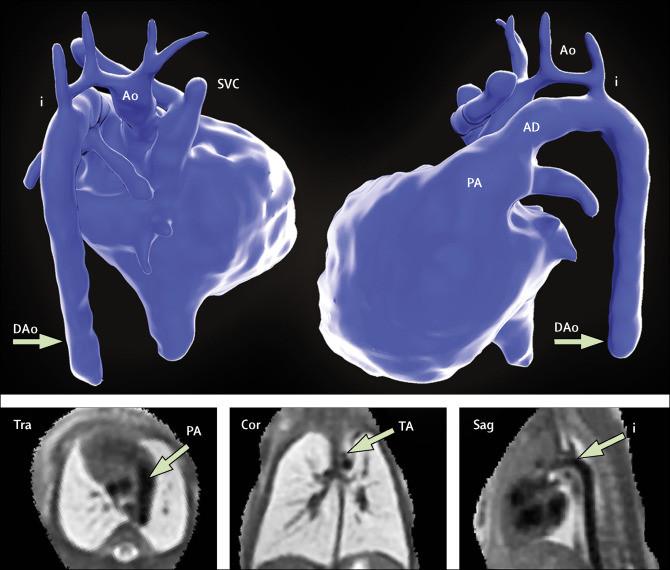 Cientistas captam imagens 3D de coração de bebé dentro do útero