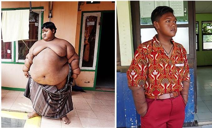 Criança mais obesa do mundo já perdeu metade do seu peso