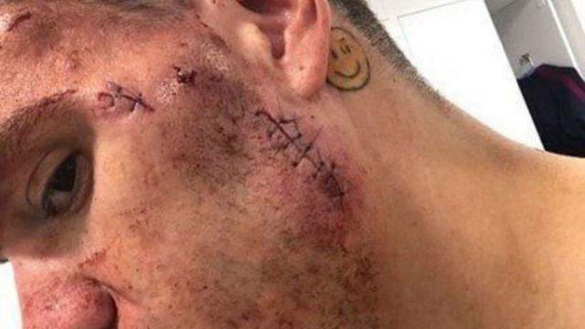 O 'lado negro' de uma vida de desportista: As cicatrizes depois do choque