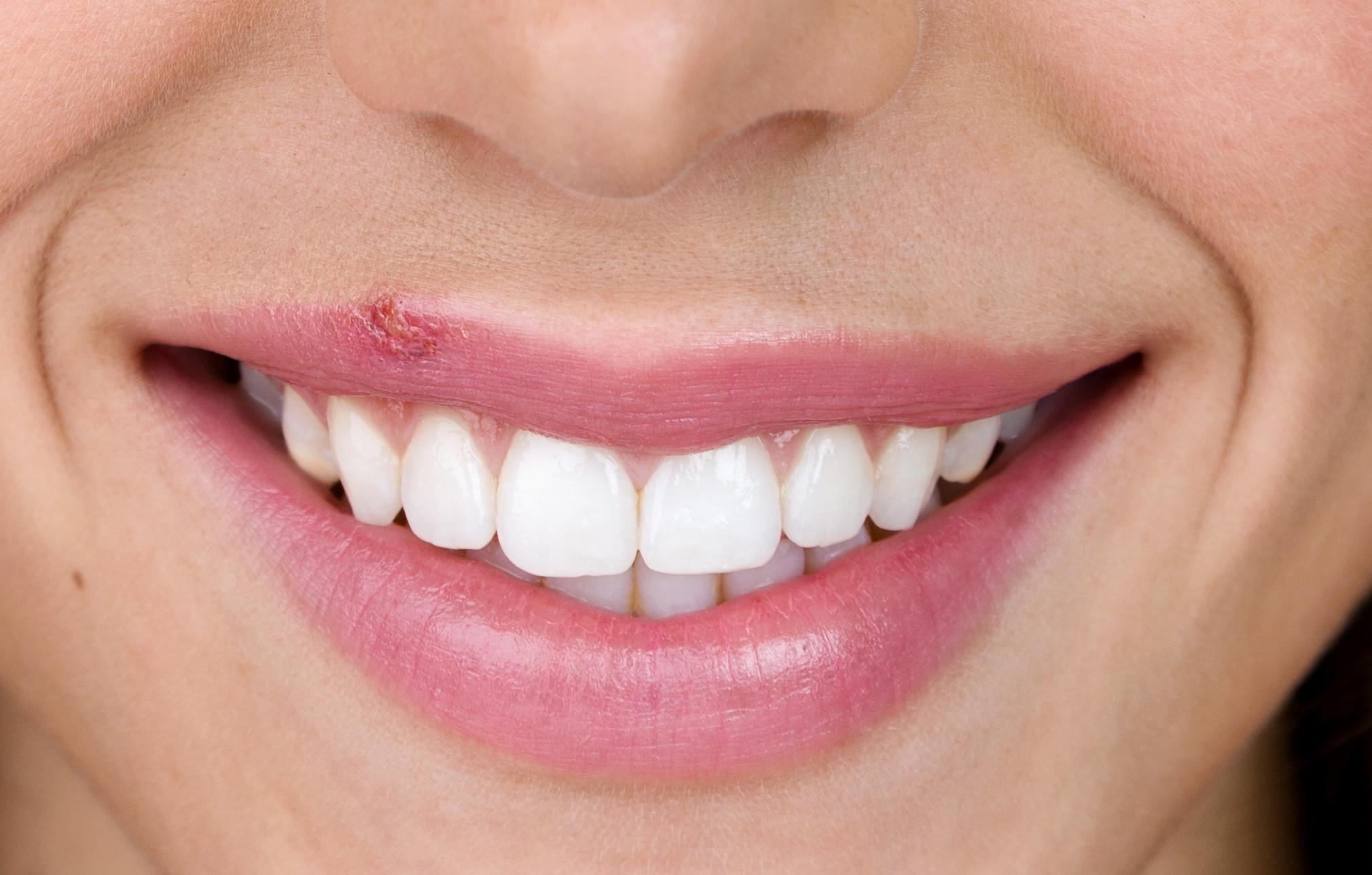 Herpes labial: Quatro métodos caseiros para se livrar de vez do problema