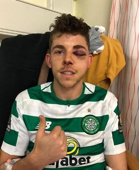 Jogador do Celtic precisa de cirurgia após ficar neste estado