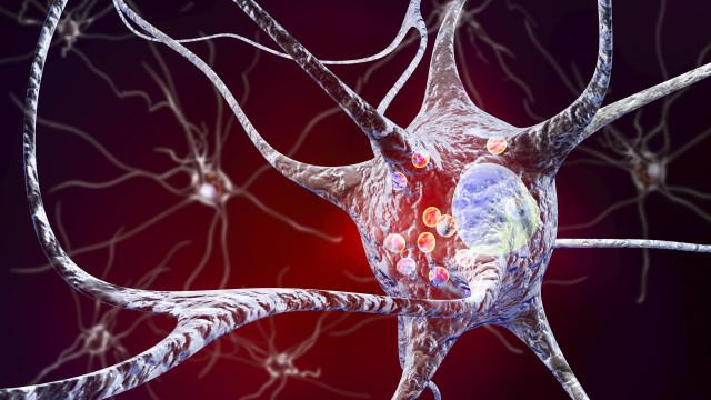Retirar apêndice pode reduzir risco de Doença de Parkinson