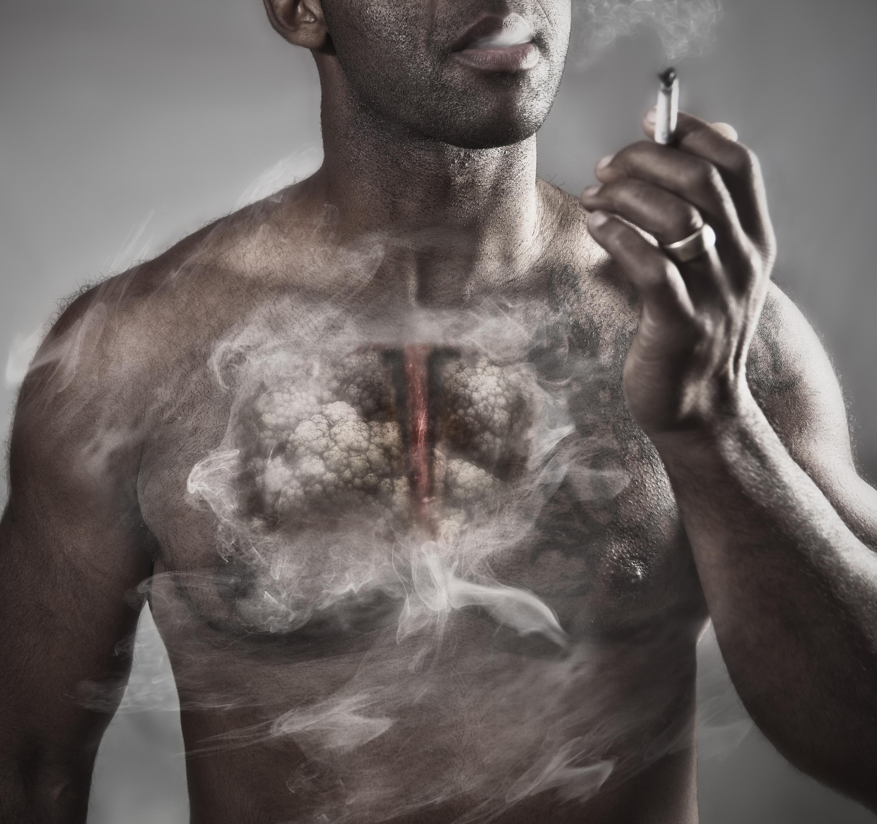 Cancro do pulmão: Os seis sinais de alarme que jamais pode ignorar